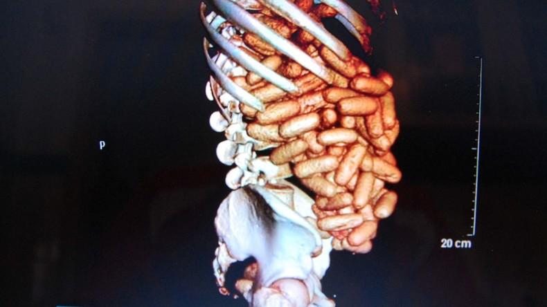 Kokain liegt schwer im Magen: Französischer Zoll schnappt Mann mit 1,7 Kilogramm Drogen im Bauch