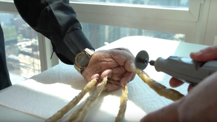 Längste Fingernägel der Welt sind abgeschnitten - und im Museum (FOTOS)