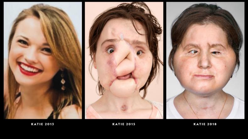 Teenagerin überlebt Selbstmord und wird jüngste US-Patientin mit Gesichtstransplantation