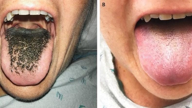 Schwarze Haarzunge: Antibiotika führen zu seltener Krankheit (Foto)