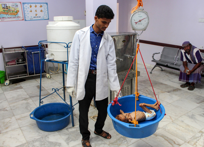 """Ein unterernährtes jemenitisches Kind wird am 19. September 2018 in einem Krankenhaus in der nordwestlichen Provinz Hajjah gewogen. Der drei Jahre andauernde Krieg  hat das Land an den Rand einer Hungersnot geführt, durch die laut """"Save the Children"""" 5,2 Millionen Kinder vom Hungertod bedroht sind."""