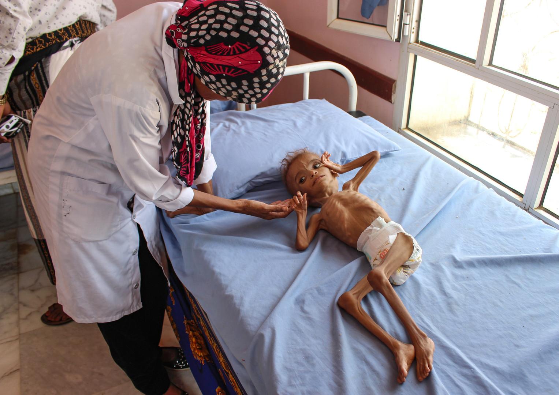 19. September 2018. Eine Krankenschwester betreut ein unterernährtes jemenitisches Kind in einem Krankenhaus im nördlichen Bezirk Abs in der nordwestlichen Provinz Hajjah.