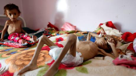 Der Jemen ist unter der Last des von Saudi-Arabien geführten Krieges kollabiert. Zehntausenden Kindern droht der Hungertod.