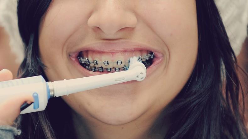 Zahnspangen: Korrektur mit Nebenwirkungen?