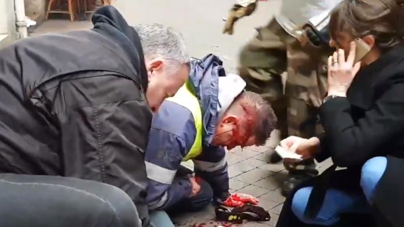 Polizei schießt mit Gummigeschossen auf Kopf: Feuerwehrmann und Gelbwesten-Aktivist im Koma