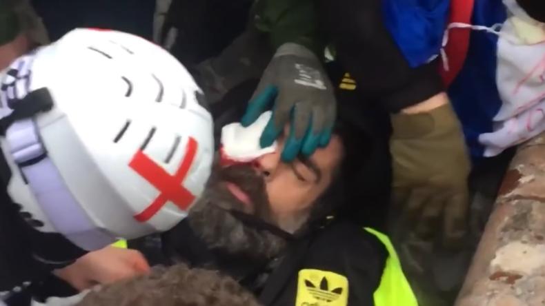 """Paris: """"Werde mein Auge verlieren"""" – Friedlicher Demonstrant durch Polizeigeschoss schwerverletzt"""