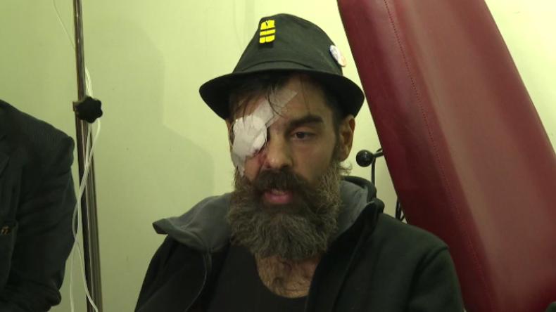 """Verletzter Gelbwesten-Aktivist: """"Mein Augapfel wurde genäht, aber ich werde weiter protestieren!"""""""