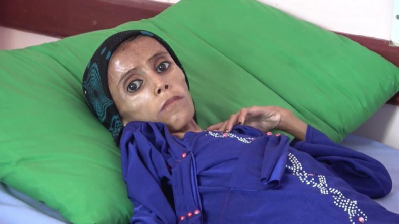 Nur Haut und Knochen: Zwölfjährige, die zehn Kilogramm wiegt, als Schreckensbild des Jemenkriegs