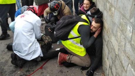 Der Teilnehmer des Protestzuges der Gelbwesten, der offenbar seine Hand verlor