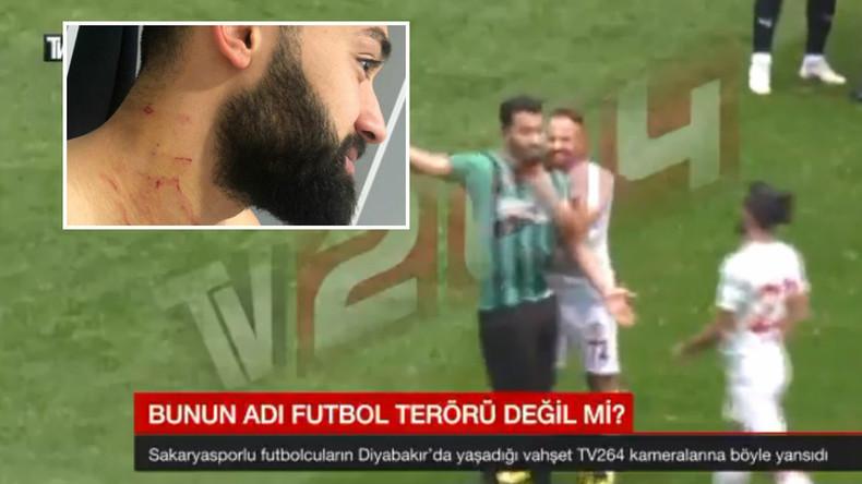 Türkischer Fußballspieler bringt Rasierklinge zum Spiel und verletzt Rivalen (Fotos, Video)