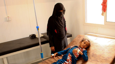Eines von über 100.000 Kindern, die allein in diesem Jahr an Cholera erkrankt sind, in einem Cholera-Behandlungszentrum in Haddscha, Jemen, 20. April 2019