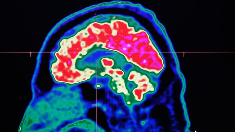 Anomalien im Gehirn? Rätsel um US-Botschaftsmitarbeiter in Kuba