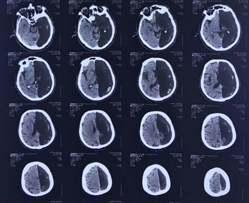 Spektakulärer Fund von Ärzten in Moskau: Mann lebte 60 Jahre problemlos mit nur einer Gehirnhälfte