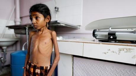 Die mangelernährte  zehnjährige Afaf Hussein wird in einem Krankenhaus in Sanaa gewogen - Der Krieg der Saudi-geführten Allianz gegen das Land im Süden der Arabischen Halbinsel gilt als einer der Hauptgründe für die zunehmende Zahl an unterernährten Kindern im Jemen.