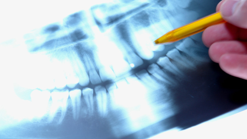 Von der Natur bevorteilt: Indische Ärzte entfernen 526 überflüssige Zähne aus Mund eines Jungen