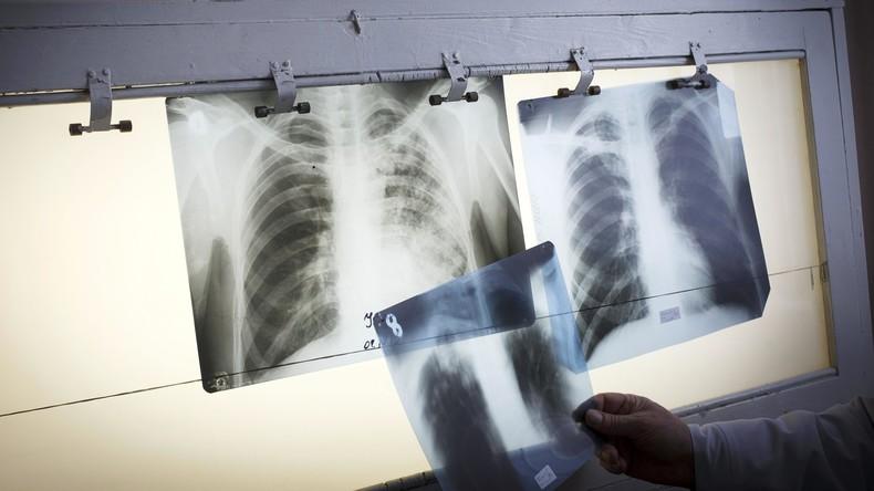 Wien: Skandal um Organspende im größten Krankenhaus Österreichs