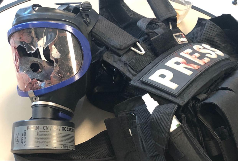 Von Granate verletzter Journalist: Französische Polizei setzt Kriegswaffen gegen Demonstranten ein