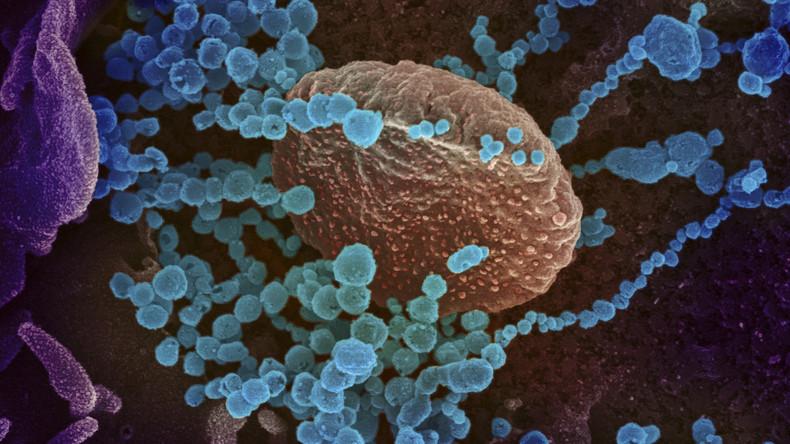 Universitätsspital Zürich: COVID-19 ist auch eine systemische Gefäßentzündung
