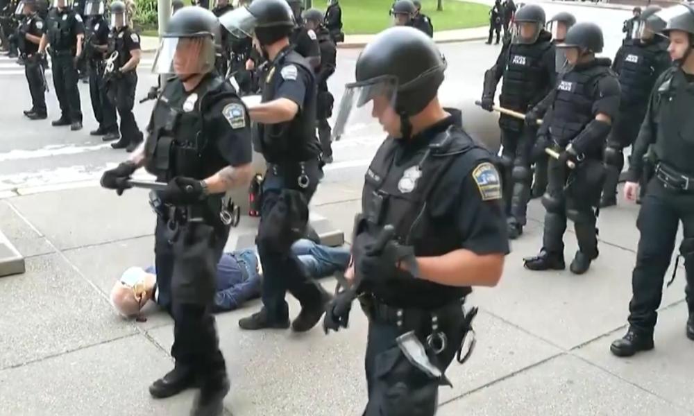 USA: Video heizt Wut auf Polizei weiter an – 75-Jähriger erleidet schwere Kopfverletzung