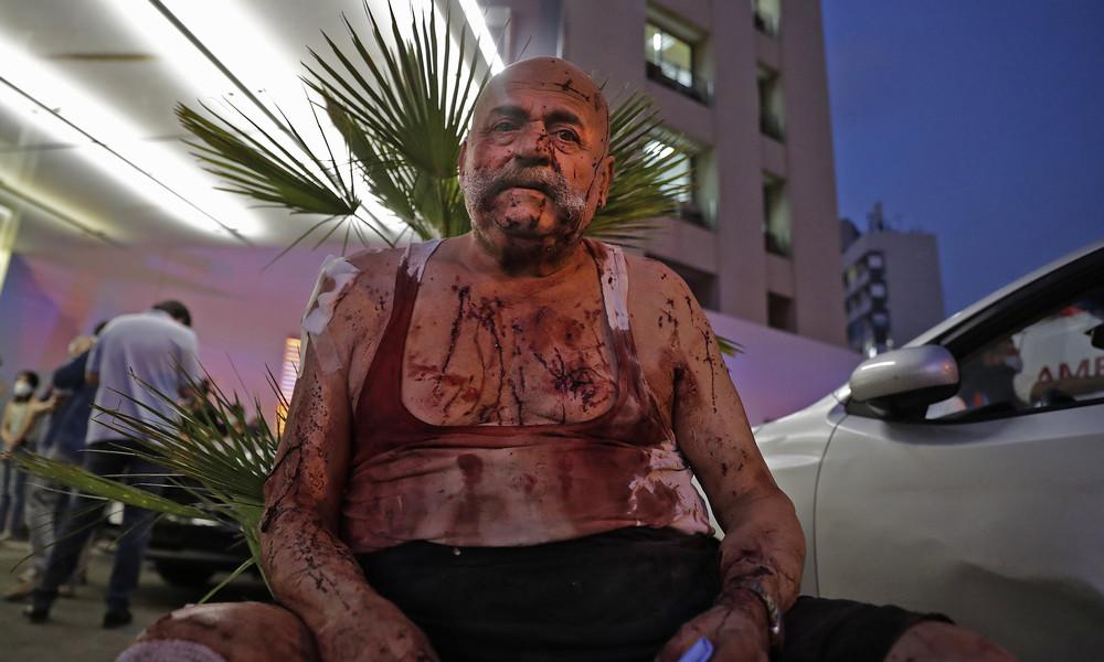 Beirut: Mindestens 50 Tote, über 2.500 Verletzte, Krankenhäuser überfordert (Video)
