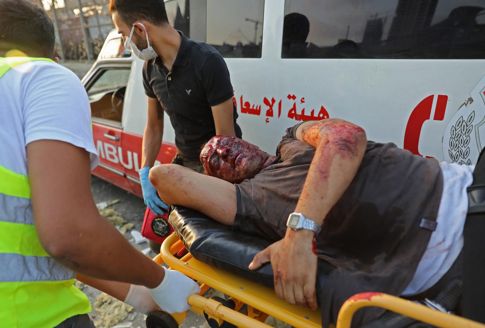 Ein Verwundeter nach großer Explosion erschütterte die libanesische Hauptstadt Beirut. 4. August 2020