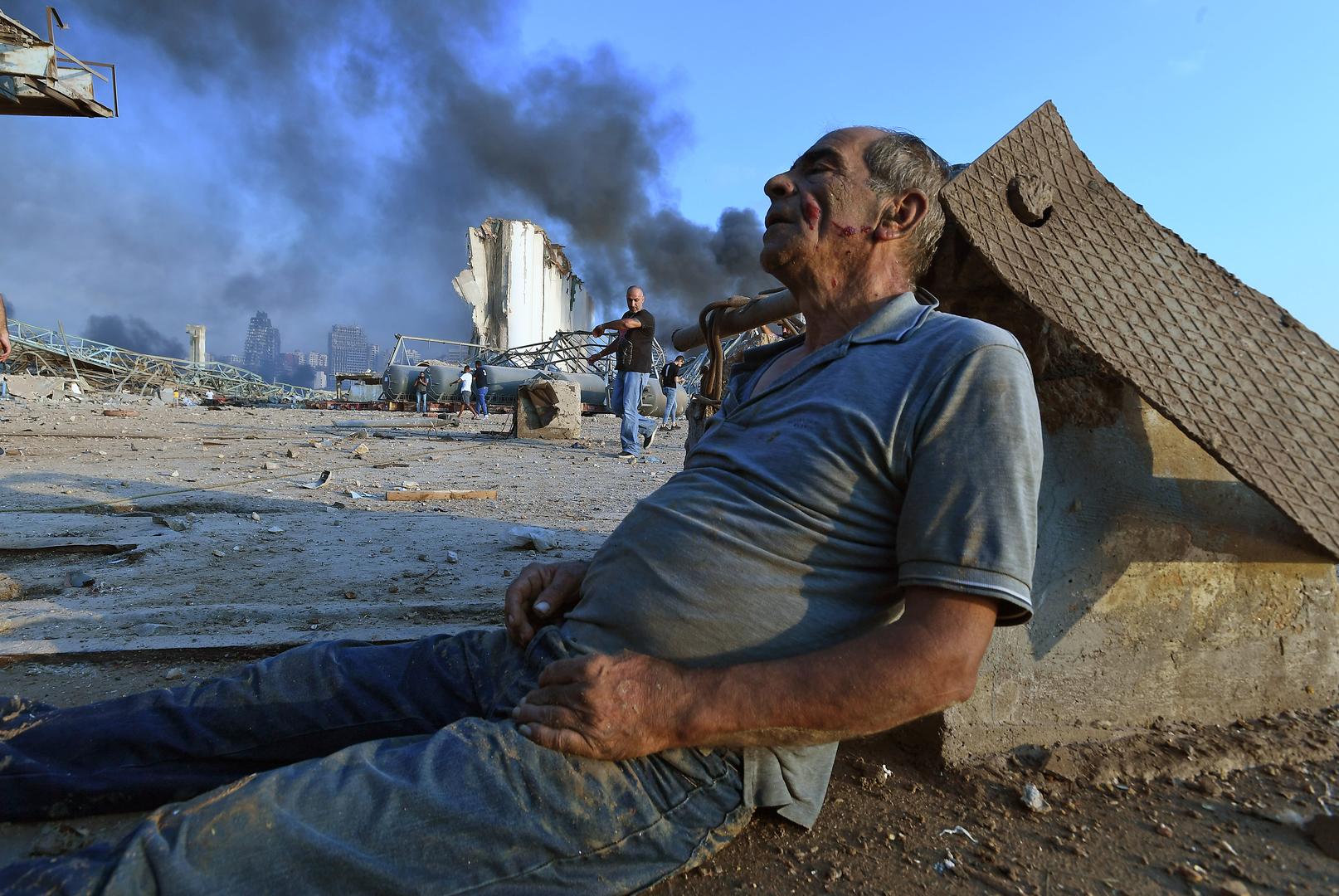 Nach einer massiven Explosion, die das Herz der libanesischen Hauptstadt traf, sitzt ein Verwundeter am Hafen von Beirut am Boden und wartet auf Hilfe. Am 4. August 2020.