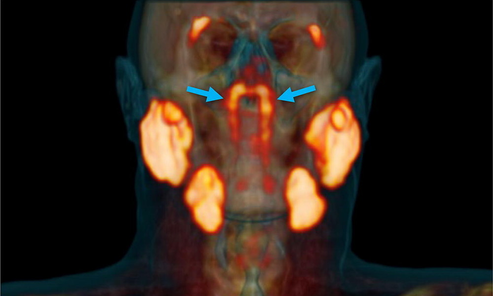 Forscher entdecken neues Organ im Rachenraum