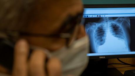 Ein Röntgenbild eines Patienten, der an COVID-19 leidet. 5. September 2020.