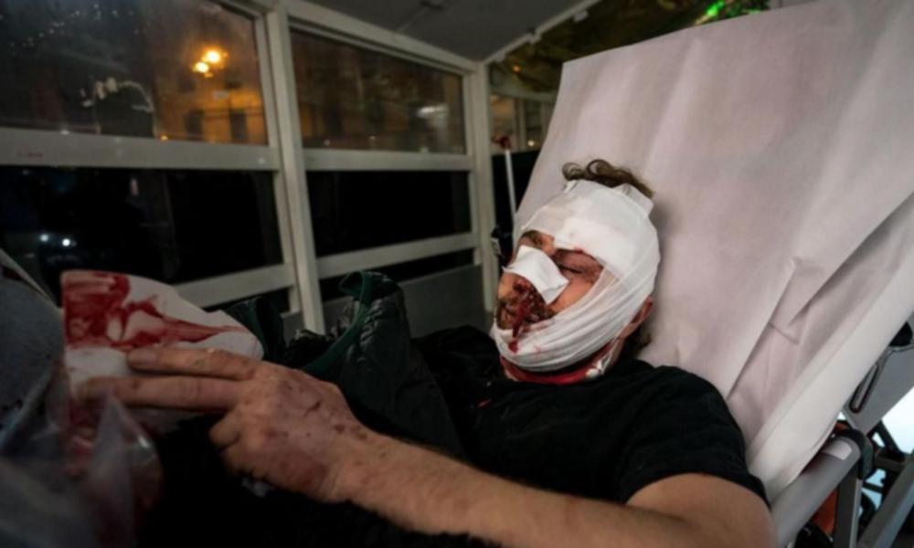 Empörung nach Polizeigewalt gegen Fotografen in Frankreich