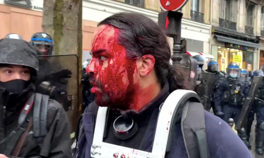 """""""Ist nur Schminke"""" – Französischer TV-Sender verharmlost Polizeigewalt gegen Demonstranten"""