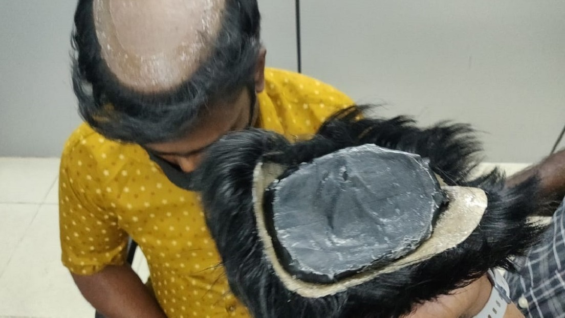 Gold unter Perücken: Indischer Zoll entlarvt Schmuggler dank auffälliger Frisuren