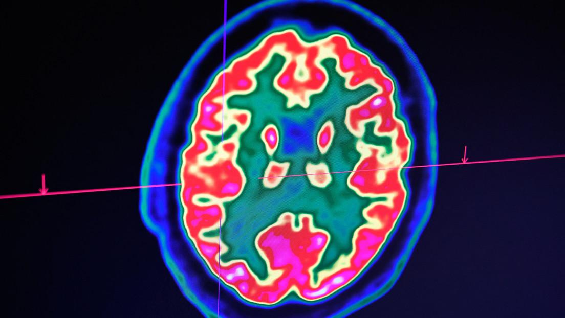 """Studie: """"Zombie-Zellen"""" werden im Gehirn nach dem Ableben aktiv"""