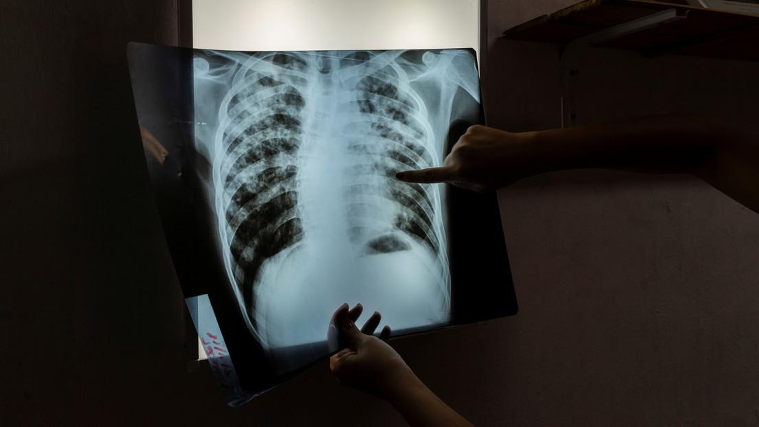 Global Fund: COVID-19-Pandemie birgt verheerende Folgen für Aids-, Tuberkulose- und Malariakranke