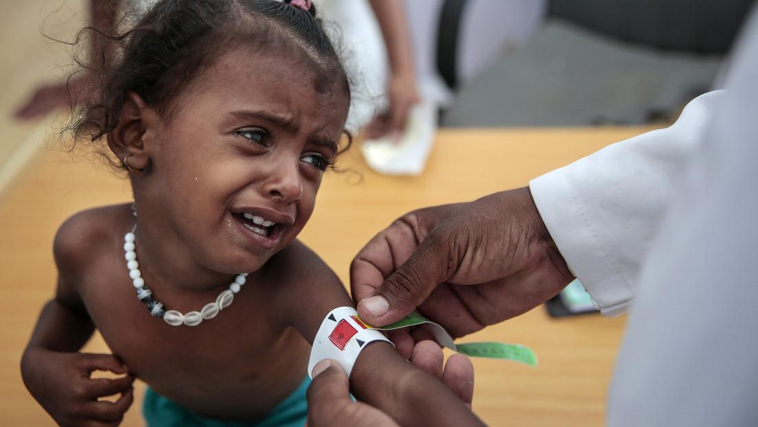UNICEF schlägt Alarm: Mehrheit der Kleinkinder in Entwicklungsländern ist unterernährt
