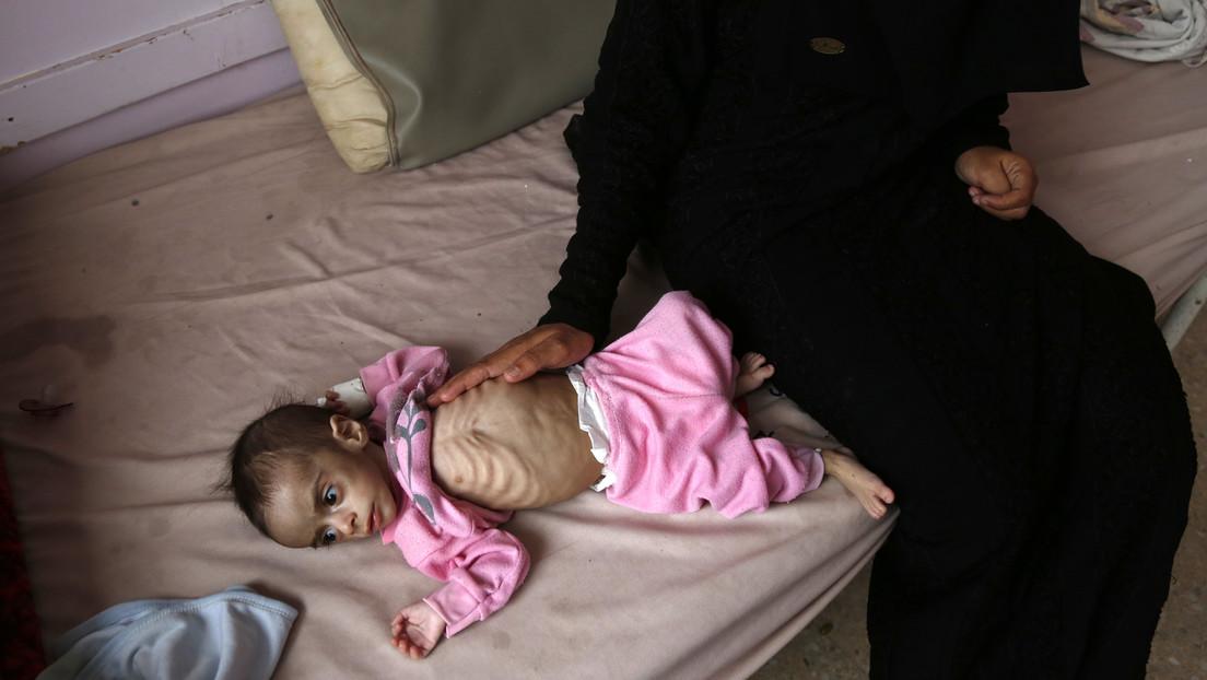"""""""Kinder sehen wie Skelette aus"""" – UN-Welternährungsprogramm über Hungersnot im Jemen"""