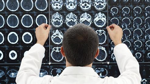 Мозг, всемогущий и уязвимый