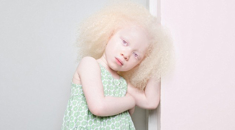 One in 20,000: Extraordinary albino beauty revealed in rare photoshoot (AMAZING PHOTOS)