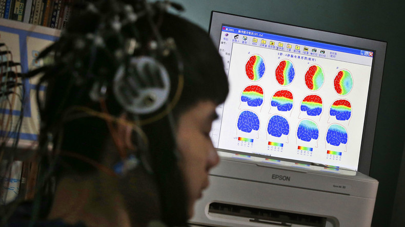Women's brains less prone to memory lapses than men's – study
