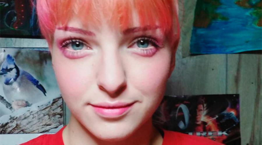 Hangover eyes: Odd make-up & injection craze form bizarre trend