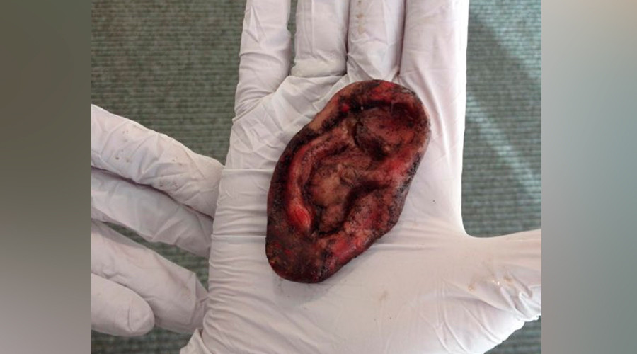 'Nothing to see ear': UK Police called over fake severed 'human' lobe