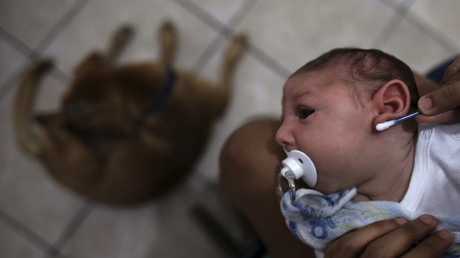 Zika found in fetus may prove link between virus and severe brain defect – study