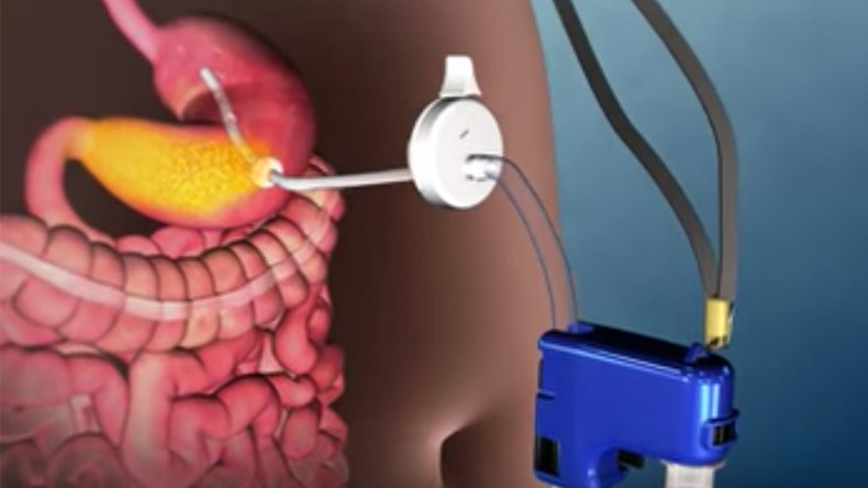 Bizarre stomach-pumping device approved in US for fighting obesity (VIDEO)