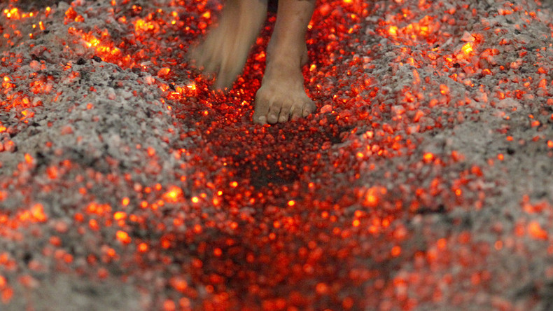 Burning, man! Scores of scorched feet at Tony Robbins firewalk in Dallas
