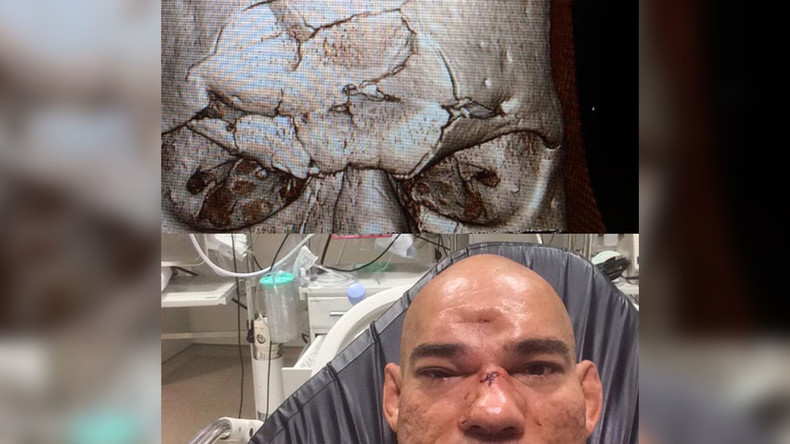 Santos suffers horrifying injury after a knee to head hit from Michael Page