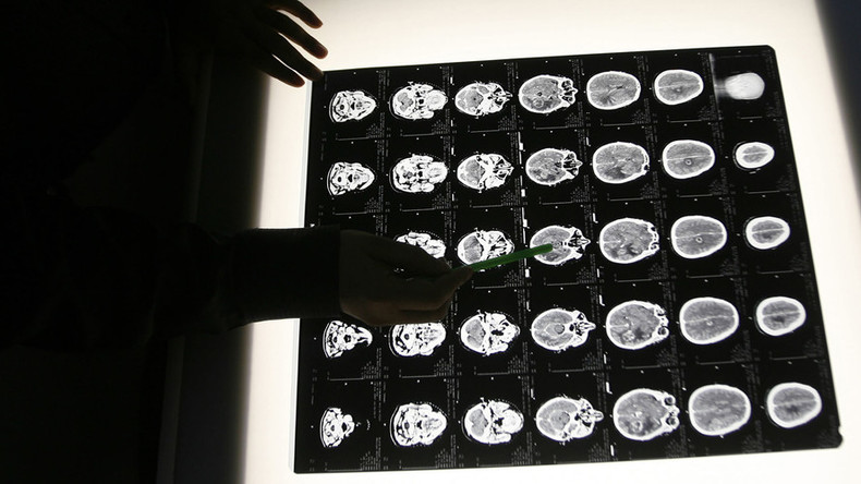 Minor childhood head injury increases chance of mental health problems, early death - research
