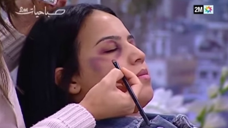 Moroccan TV show giving women tips on hiding domestic violence bruises provokes outrage