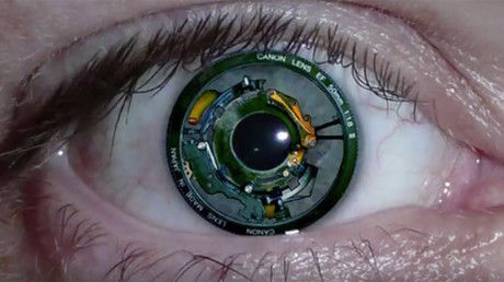 New bionic eye implant connects directly to brain, allowing blind woman to see shapes & colors
