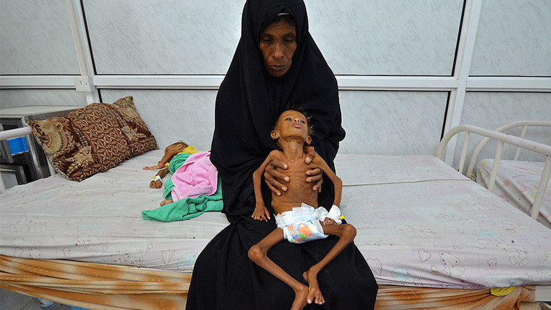 Child malnutrition at 'all-time high' in Yemen, UNICEF claims in alarming report
