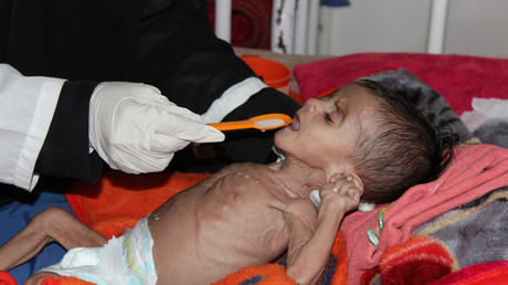 A nurse feeds a malnourished child at a malnutrition treatment centre in the northwestern city of Saada, Yemen © Naif Rahma