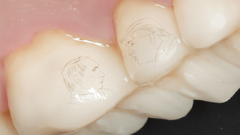 Forget gold teeth, Putin-Trump dental crowns is now a thing in Russia (PHOTOS)